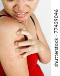 asian ethnic adult woman with allergy skin scratch itchy arm - stock photo